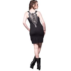 'Black Ribcage' Mini Dress